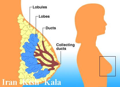 جراحی لیفت سینه و بالا کشیدن سینه