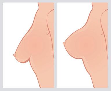رشد سینه