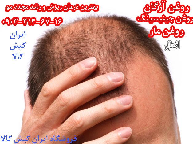 روغن مار بهترین درمان ریزش مو